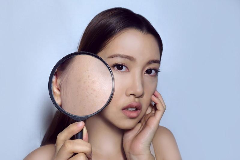 美容皮膚科でできること